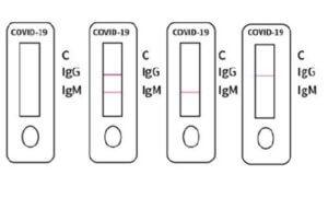 interpretación de resultados pruebas rápidas covid-19 marca vivadiag